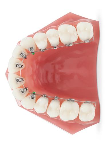 Ortodoncia Lingual Baza