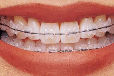 Ortodoncia Adultos Baza