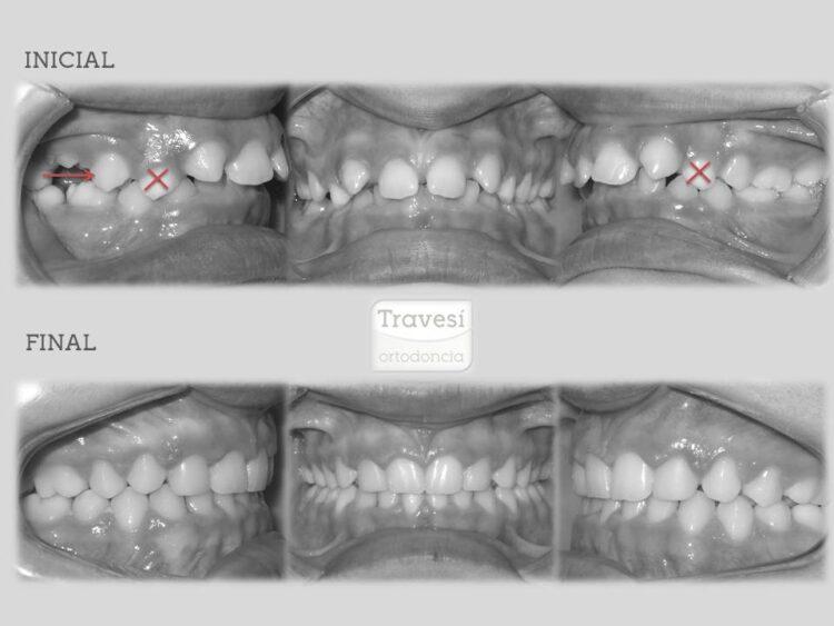 Agenesia de Incisivos laterales superiores con mesialización de arcada completa y transformación de caninos superiores