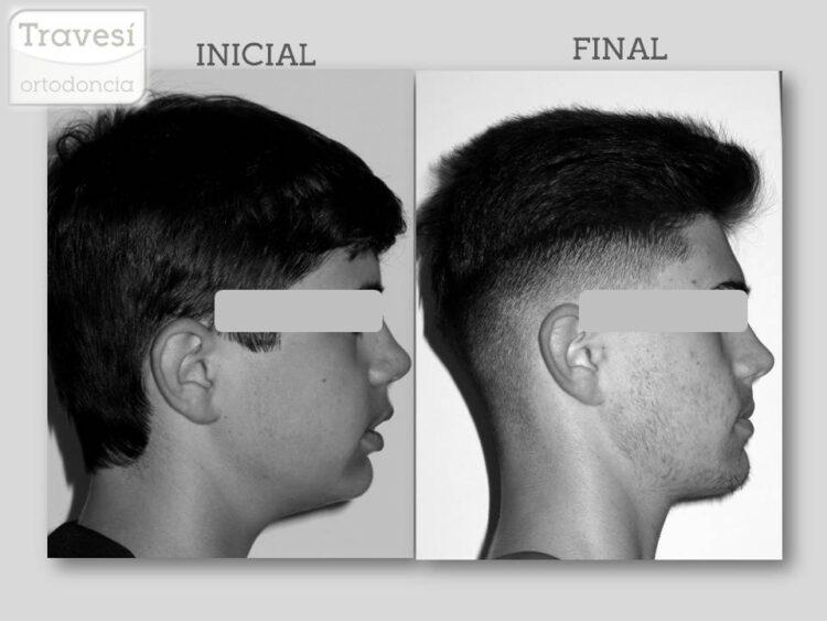 Cambios en el perfil con Ortopedia de Avance Mandibular con Invisalign
