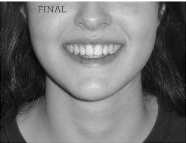 Clase III con mordida cruzada lateral Sonrisa final