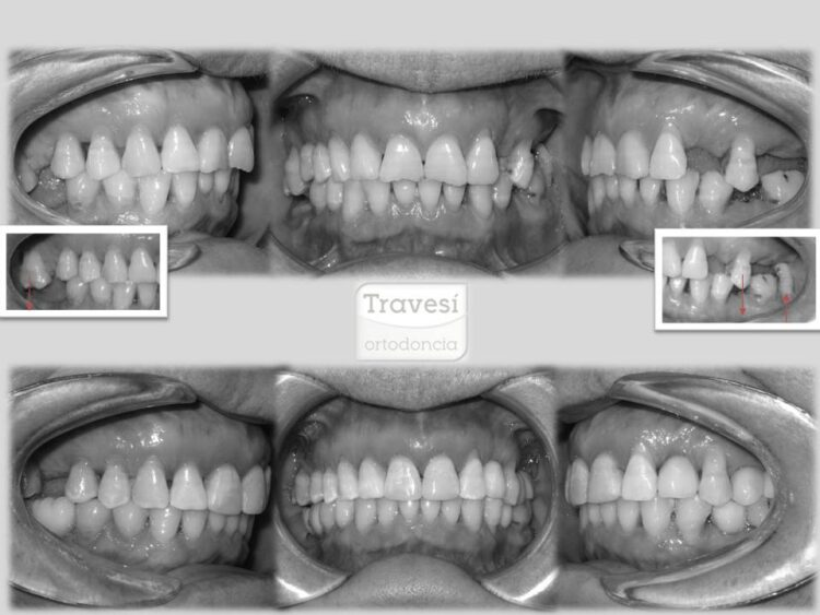 Intrusión de molares para colocación de implantes con invisalign