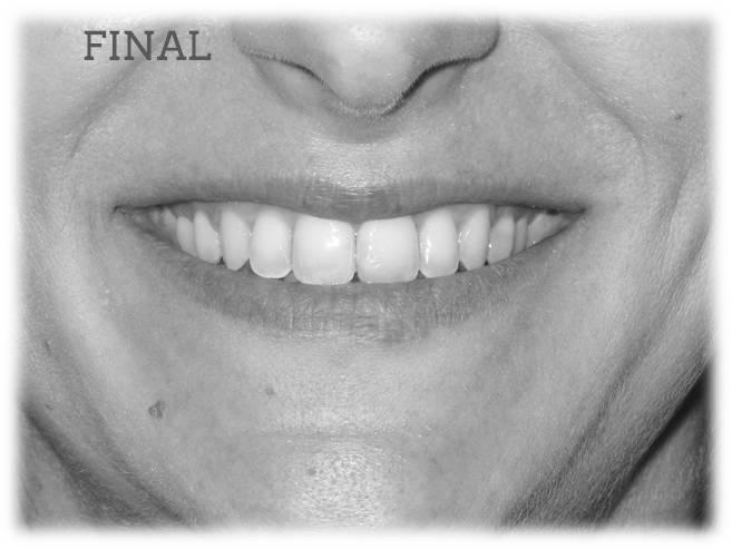 Lite Apiñamiento Sonrisa final