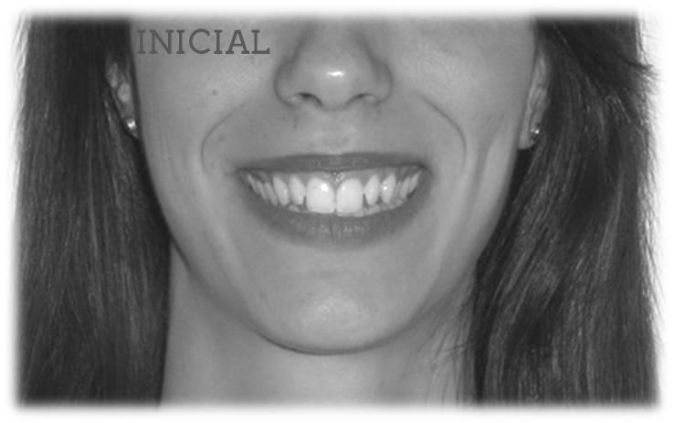 Lite Clase II 2ª Sonrisa inicial