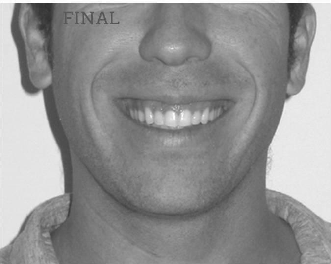 Lite compresión arcadas sonrisa final