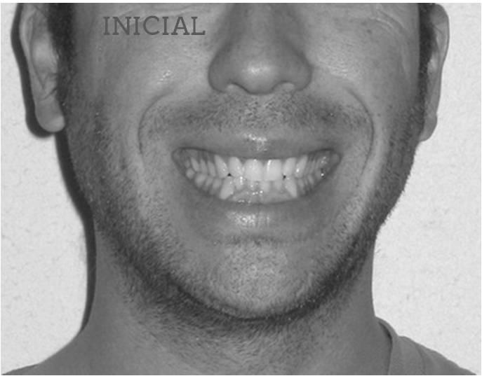 Lite compresion arcadas sonrisa inicial