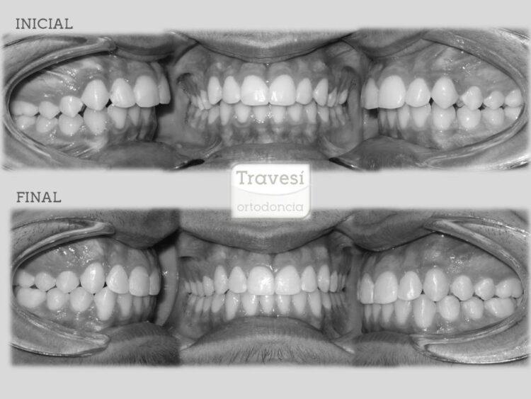 Ortopedia de avance Mandibular con Invisalign