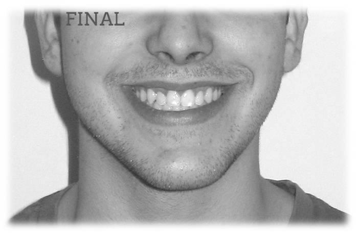Retratamiento Mordida Abierta Sonrisa Final