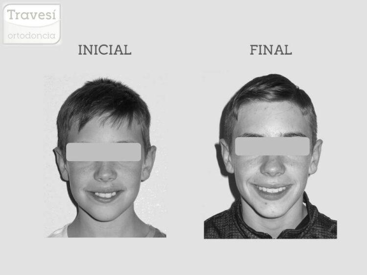 Sonrisa Clase II sobremordida